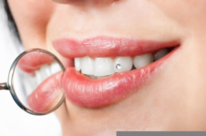 Why Should You Consider Dental Implants Treatment, Lawrenceville?