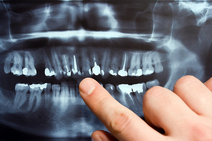 Why Dentists Take Dental X-Rays, Lawrenceville?