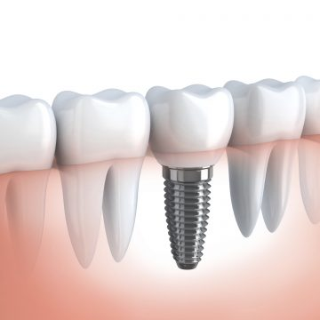 How Do Dental Implants Help If You Have Full Dentures in Lawrenceville?